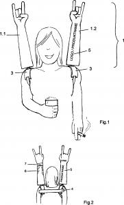 DE 102011011353A1 Artificial Arm